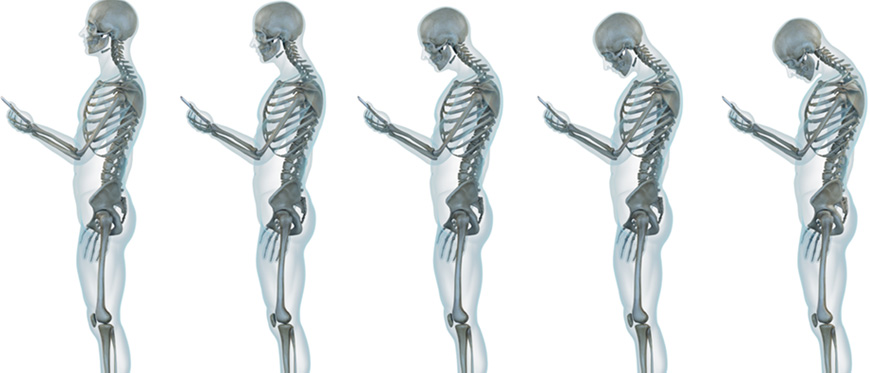 Skeletal views of good to poor neck posture while looking at phone