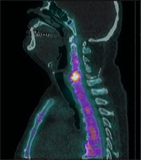 Bone scan showing tracer tagging point in spine